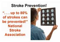 Stroke Risk Assessment Tool