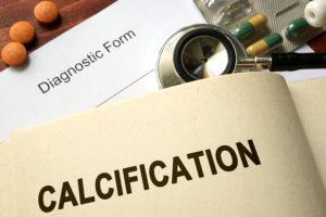 Reversing Vascular Calcification