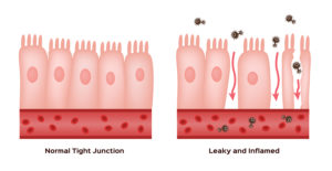 L-glutamine and Leaky Gut