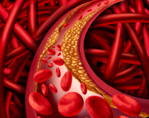 Reduce Arterial Plaque Naturally