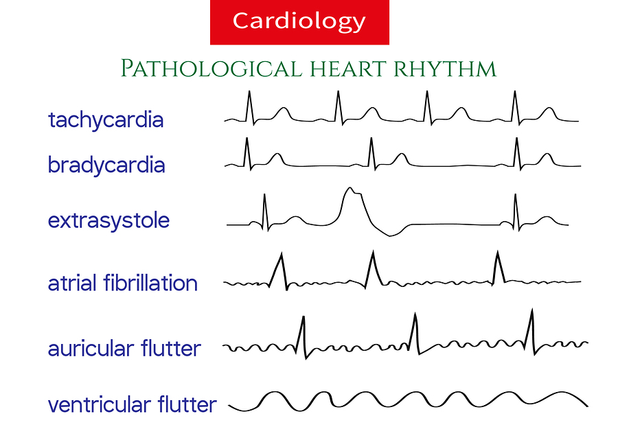 Naturally Eliminate Heart Arrhythmia