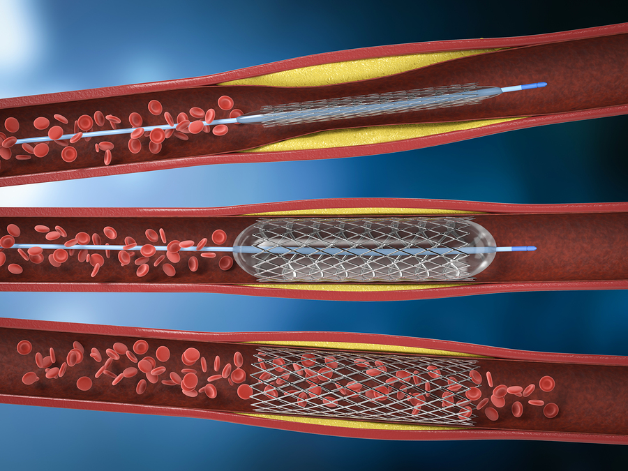 To Stent or Not To Stent