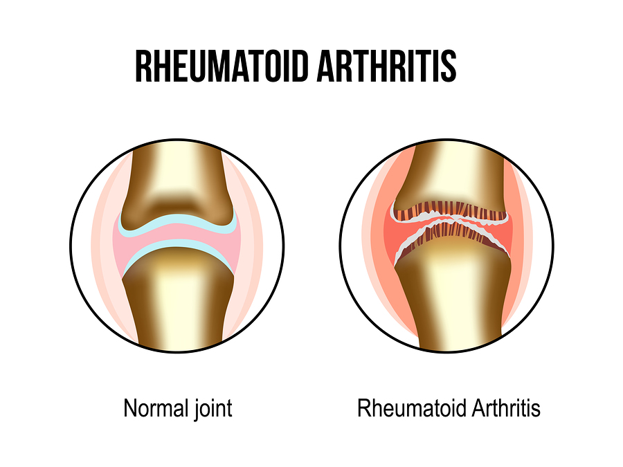 Natural Remedies for Rheumatoid Arthritis