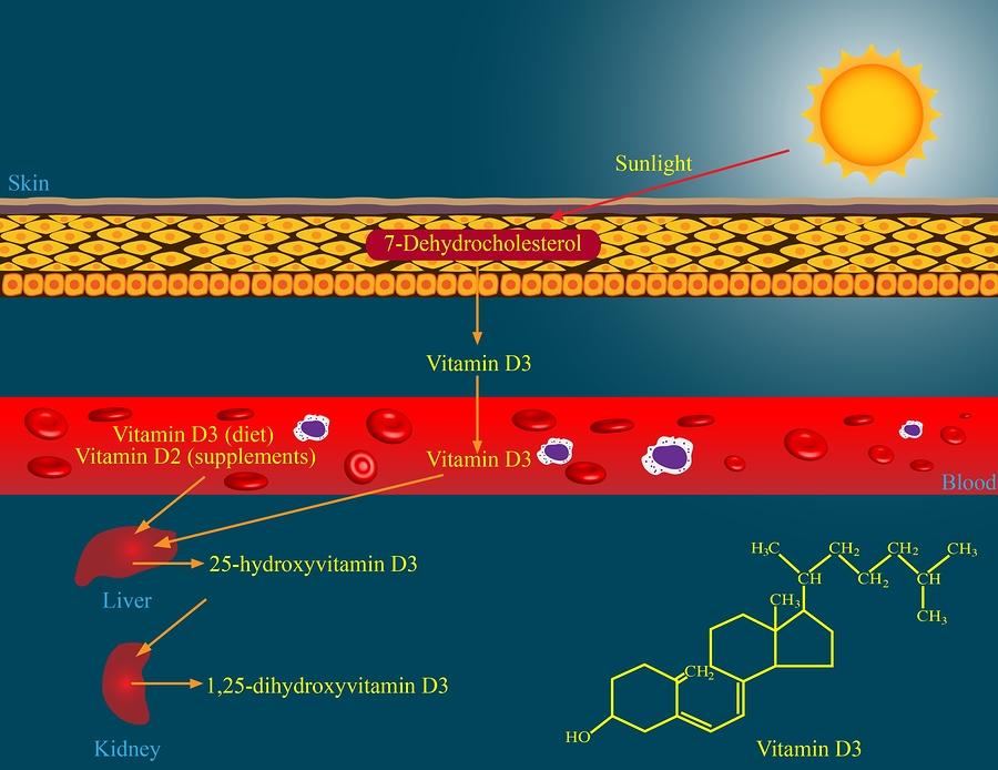 CoVid19 and Vitamin D Deficiency